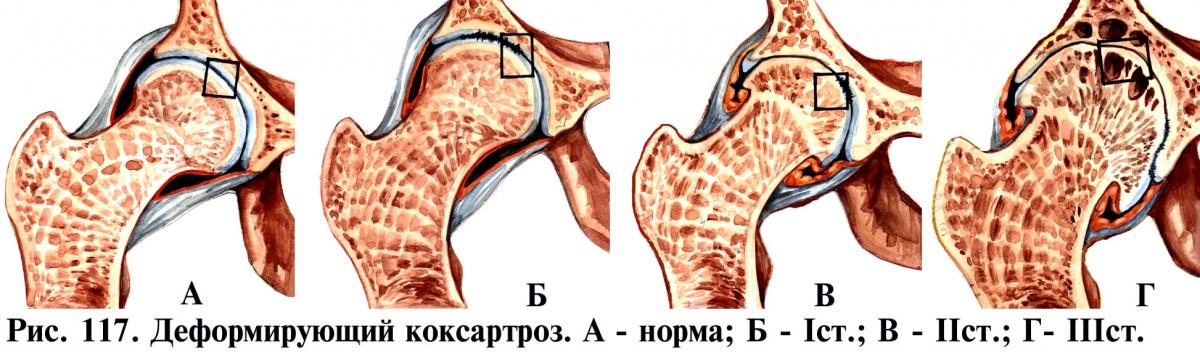 Деформирующий коксартроз 1 степени